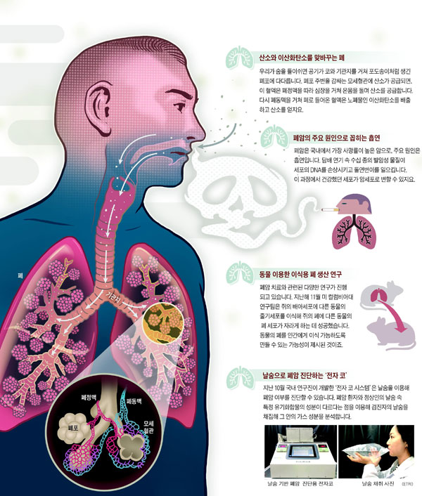 [재미있는 과학] 환자 세포 떼어내 폐암 조직 재현… 맞춤형 치료제 찾죠